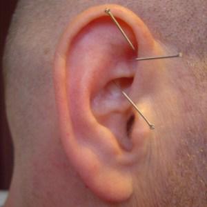 Japanese Acupuncture | Japanese Acupuncture London
